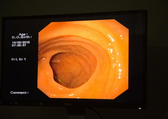 Inside look of body through endoscopy