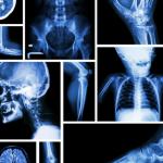 X Ray Radiation risk