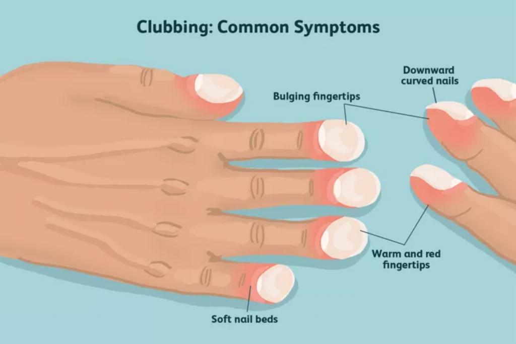 clubbing common symptoms