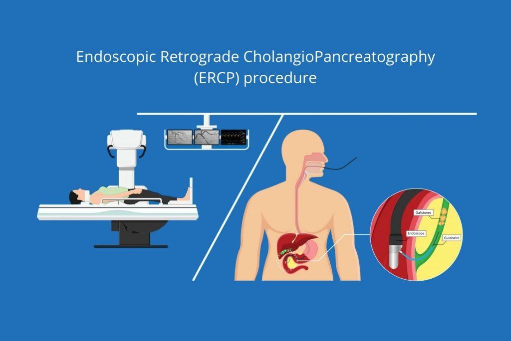 Endoscopic Retrograde CholangioPancreatography ERCP procedure