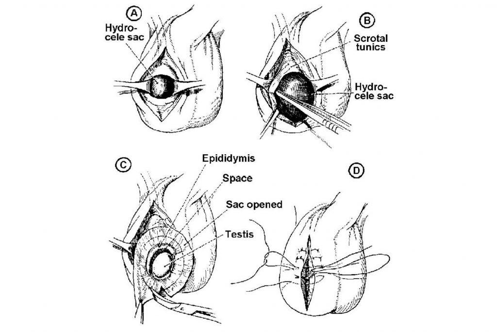 hydrocele procedure steps